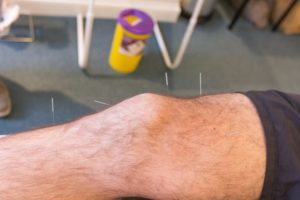 acupuncture on knee